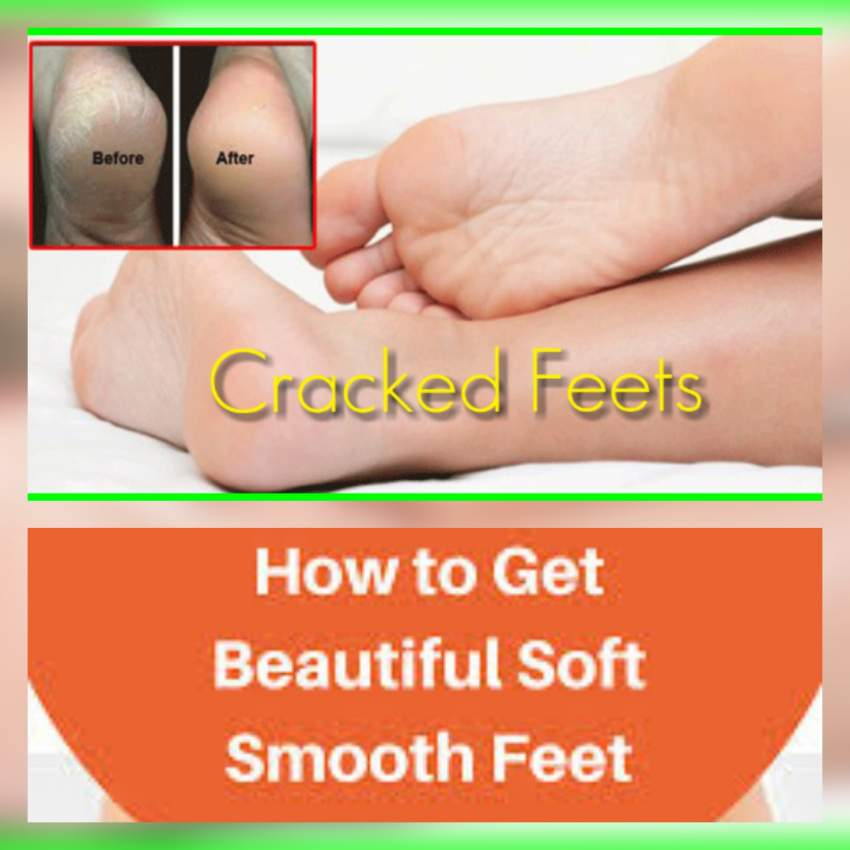 Cracked heels - Manicure products at AsterVender