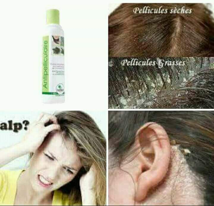 Anti-pelliculaire - Hair treatment at AsterVender